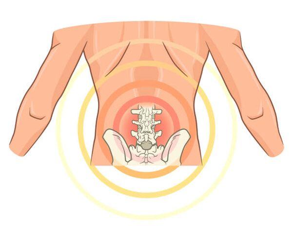 milyen gyógyszereket alkalmaznak az ágyéki osteochondrozis kezelésére egér ízületi betegségek